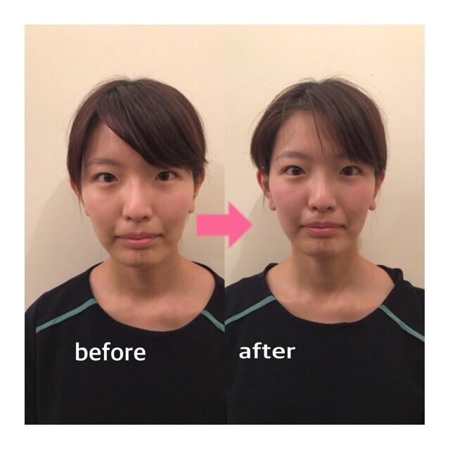 小顔矯正 施術後 施術前