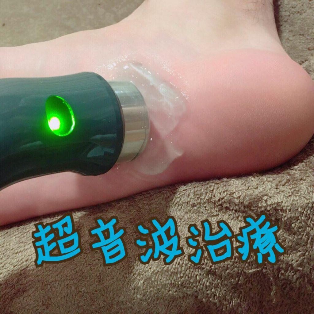 超音波治療(足裏)