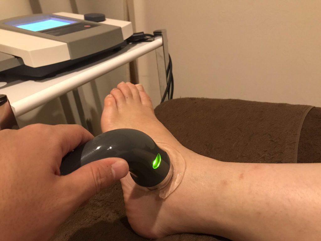 捻挫の超音波治療