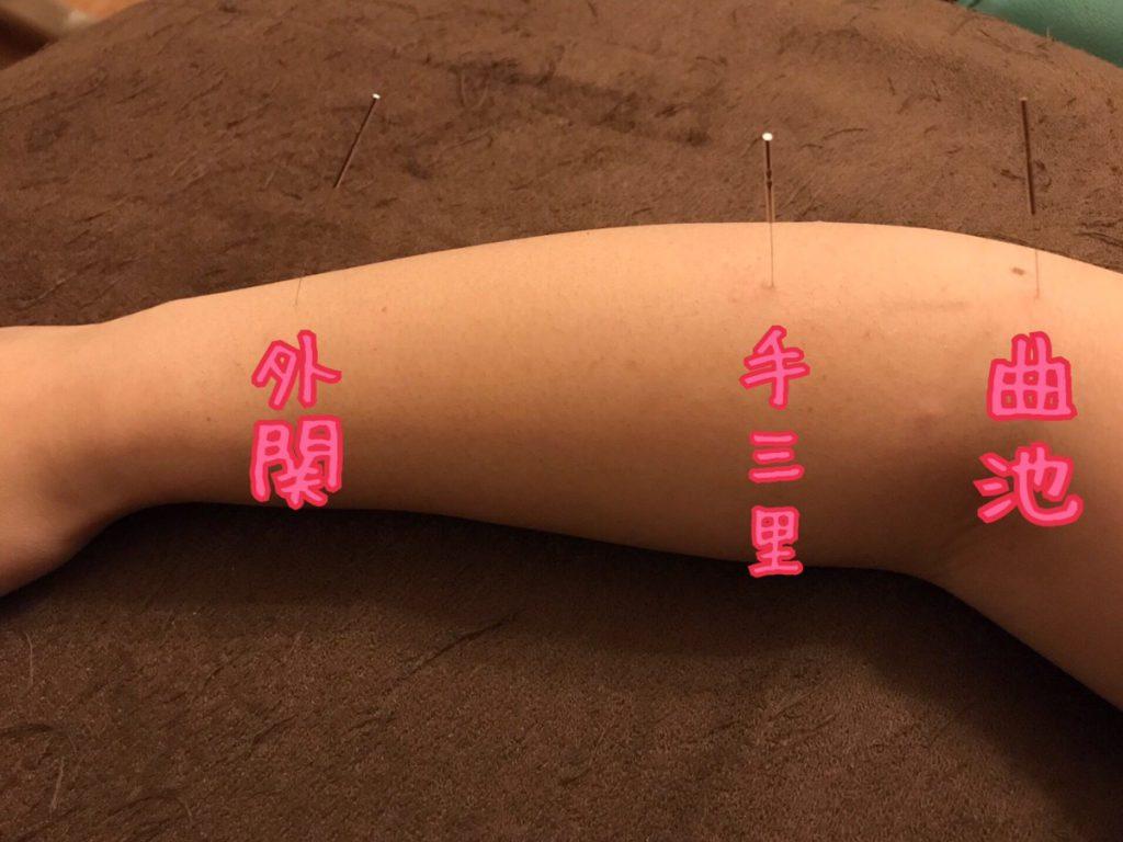 テニス肘の治療