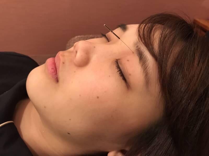 眼窩内刺鍼1