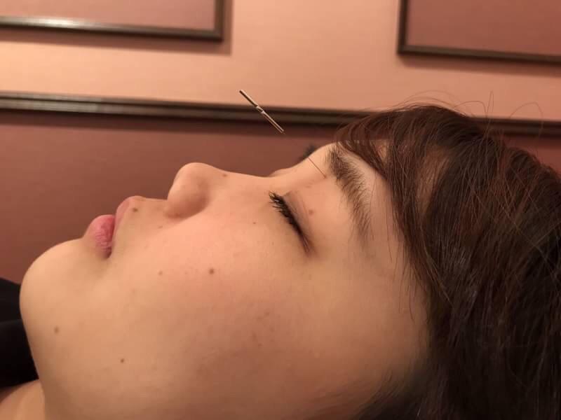 眼窩内刺鍼2